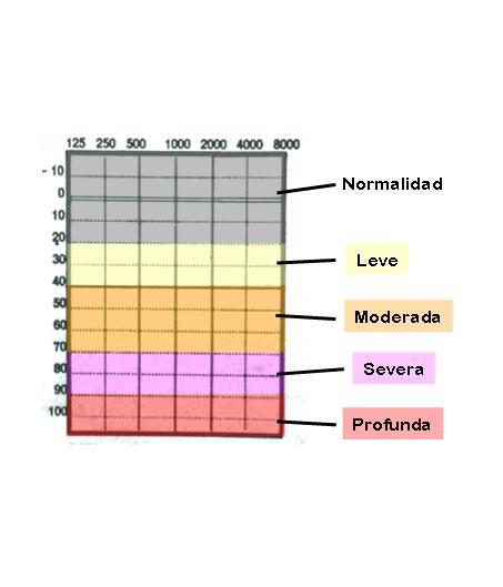 Clasificación de la intensidad de la sordera según la BIAP
